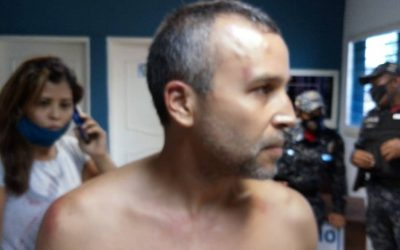 Diputada Yuretzi Idrogo constató agresión al odontólogo Willians Arrieta